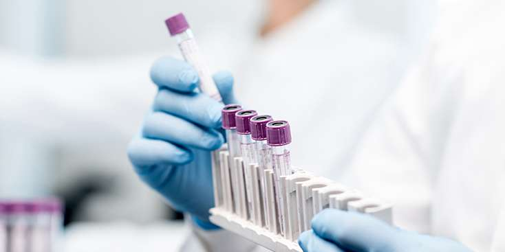 Antikor Testi Nedir