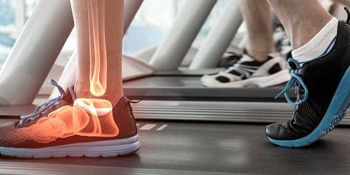 Ayaklarda Yanma/Ağrı Sebepleri ve Tedavi Yöntemleri