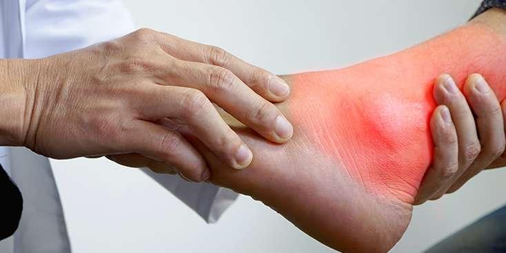 Gut Hastalığının Belirtileri, Tanı ve Tedavi Yöntemleri